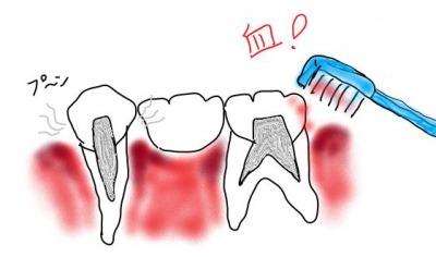歯槽膿漏で歯茎から出血して臭い