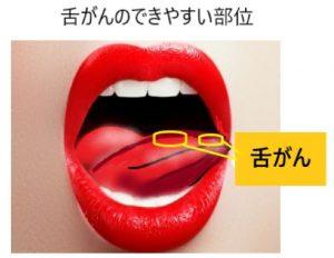 舌がんのできやすい場所
