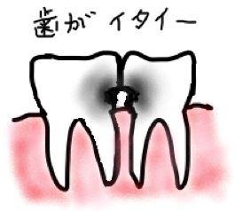 隣接面の虫歯で歯が痛い