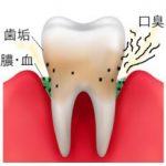 歯周病はうがいで治る!?アルカリイオン水うがいで進行が防げる