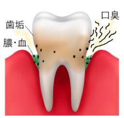 歯周病で膿臭い