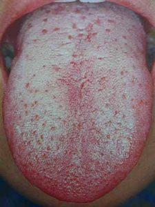 慢性的な舌苔