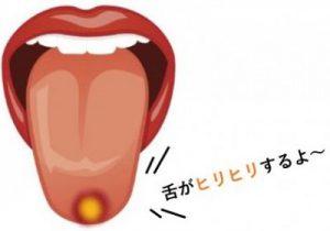 舌の先端の口内炎2