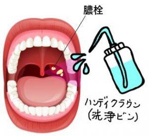 膿栓の取り方…ハンディクラウン(洗浄瓶)