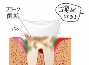 歯垢(プラーク)が臭い