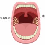 膿栓(臭い玉)が喉にできる人とできない人の特徴とは?その違いについて教えます