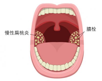 慢性扁桃炎で膿栓ができる