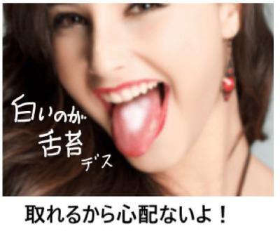 舌の白いのが舌苔