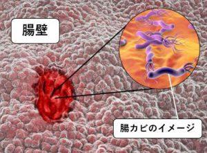 腸カビのイメージ