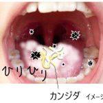 口の中が、白い、赤い、ヒリヒリする、苦い!口腔カンジダの症状かも?