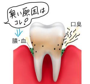 歯周ポケットの臭い液