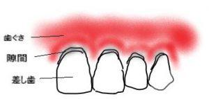 差し歯と歯ぐきの境目