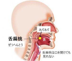 舌扁桃にできる膿汁