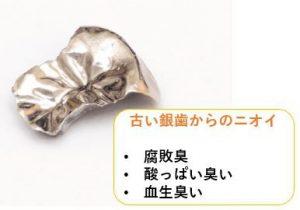 古い銀歯からの臭いの症状