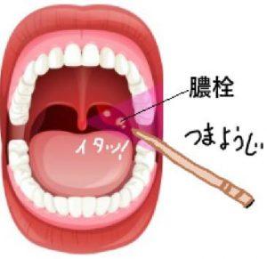 膿栓の取り方…爪楊枝