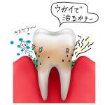 歯周病をうがいで治す方法とそのやり方について教えます。