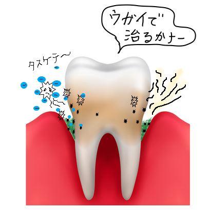 うがいで歯周病を治す