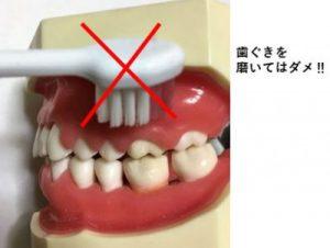 歯ぐきを磨いてはだめ
