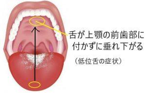 低位舌の症状
