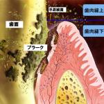 舌の細菌が口臭を発生させる!原因は歯周病菌が舌に感染するから