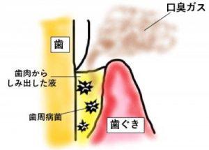 歯周病と口臭