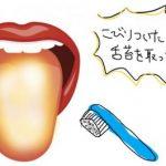 舌にびっしりこびりついた舌苔を取る方法を教えます。