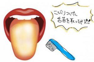 こびりついた舌苔を舌磨きで取る