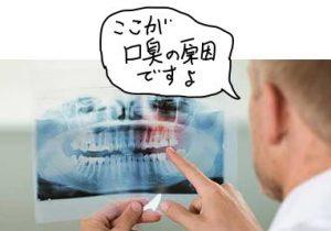 レントゲン検査で歯周病を指摘する医師