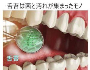 舌苔は菌の集まり