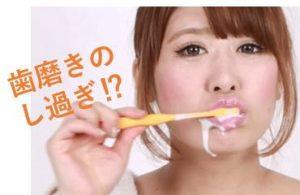 歯磨きのし過ぎ