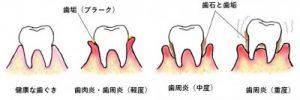 歯周病の進行レベル