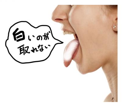 舌の白い(舌苔)が取れない