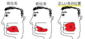 低位舌と正しい舌の位置の比較