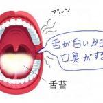 舌が臭いと口臭原因に!ニオイ対策は漢方と舌ケアで