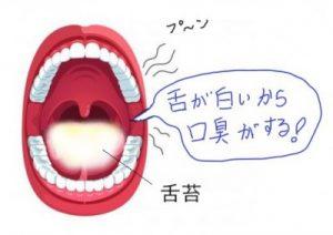 舌が白いから口臭がする