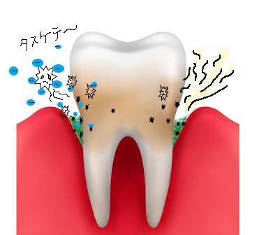 歯周病菌をアルカリで退治する
