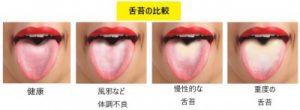 舌苔の比較