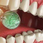 歯を失う原因の一位は歯周病!予防と歯が抜けたときの処置