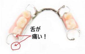 義歯で舌が痛くなる
