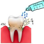 歯周病に効く市販の薬と歯磨き粉はコレ!正しい使い方はコレ!