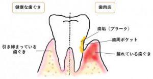 健康な歯ぐきと歯肉炎