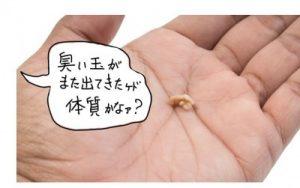 膿栓がよく出るのは体質?