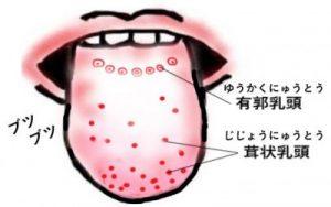 舌のブツブツ