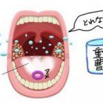 重曹うがいの舌苔除去効果は?正しく舌をケアして口臭予防する