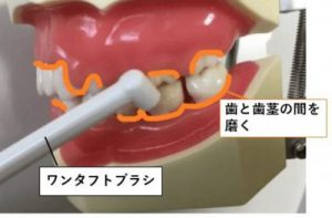 ワンタフトブラシで歯と歯茎の間を磨く