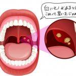 喉の奥に白いものが見えたらそれは口臭の元です。正しく取る方法とは?