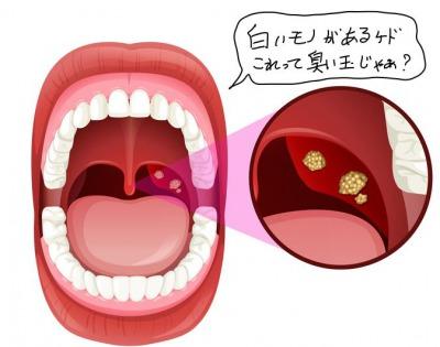 喉の奥に白いものが見えたらそれは口臭の元です。正しく取る方法