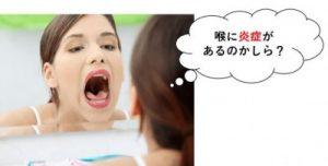 喉に炎症があるかもしれない女性