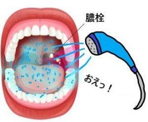 膿栓の取り方…シャワー
