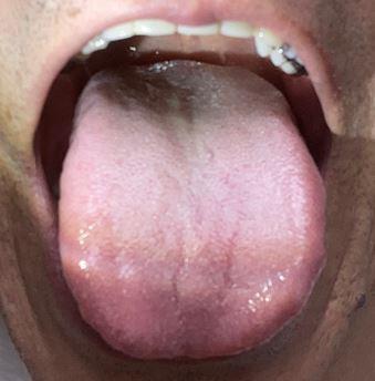 舌の奥が白い